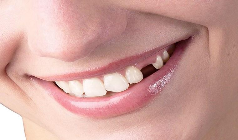 Eksik dişler birçok soruna neden oluyor!