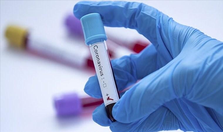 Koronavirüsü 15 dakikada tespit eden kit geliştirildi