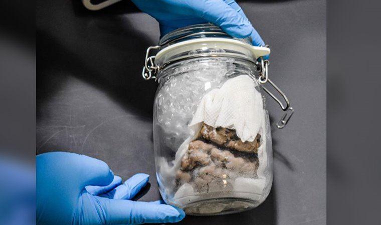 Gümrük yetkilileri  'kavanoz içinde insan beyni' buldu