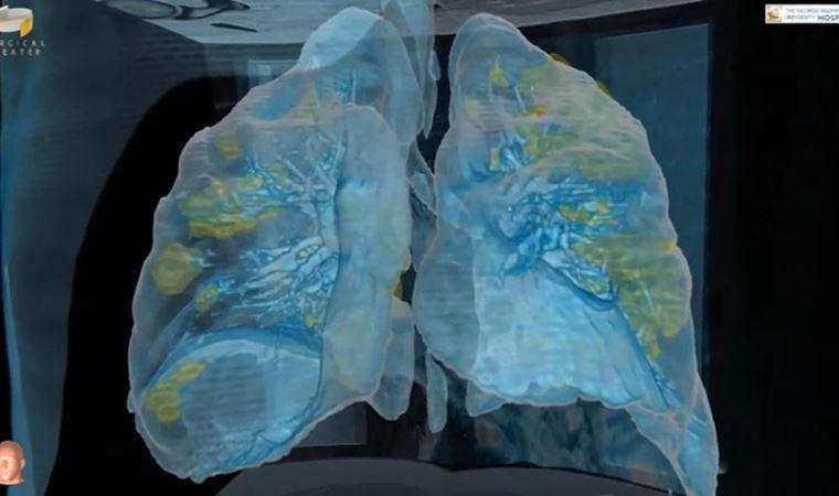 Koronavirüs, akciğerleri nasıl etkiliyor?