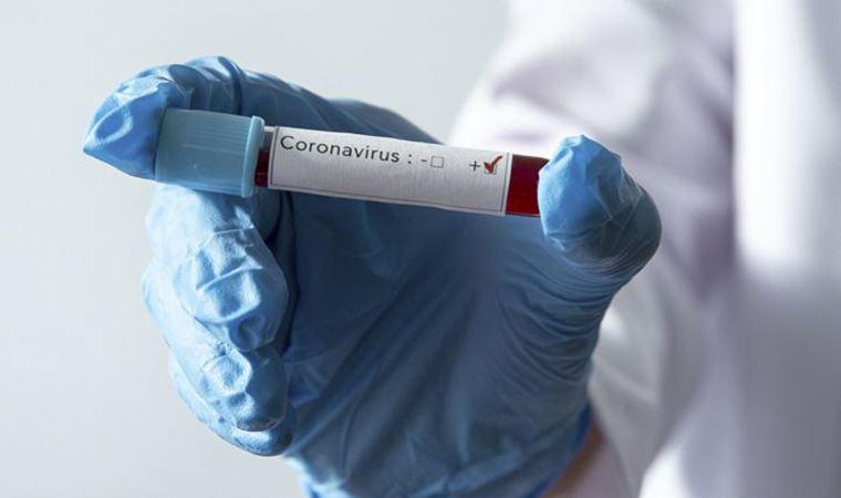 18 sağlık emekçisinin koronavirüs testi pozitif çıktı