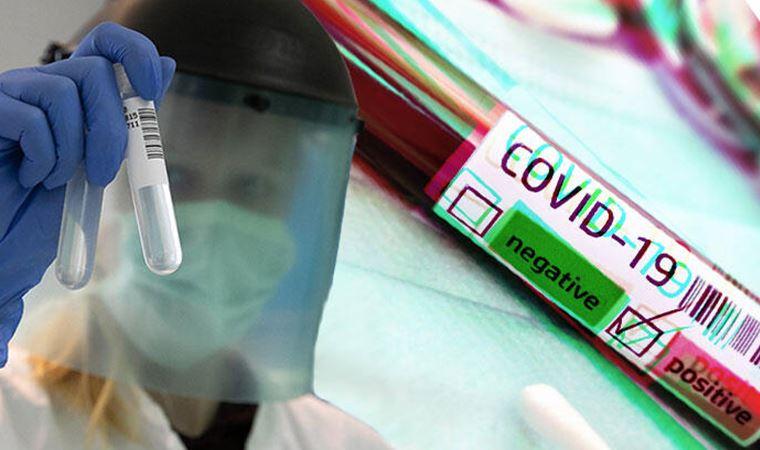 'Koronavirüs aşısı 2021 başında kullanıma sunulabilir'