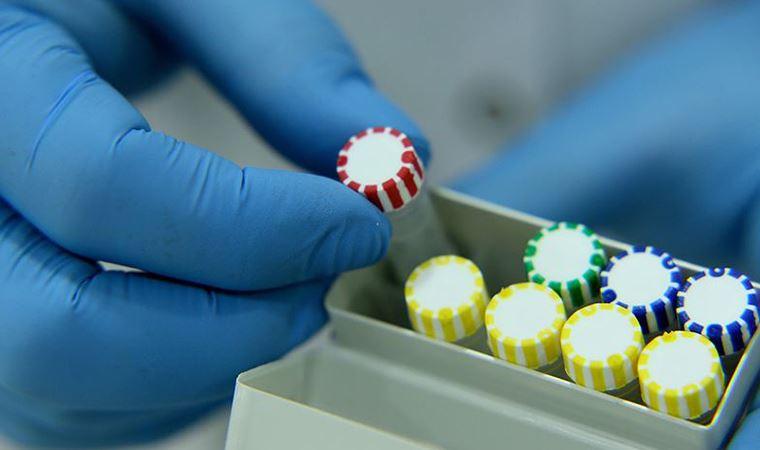 Ankara Üniversitesi açıkladı: Koronavirüs izole edildi!