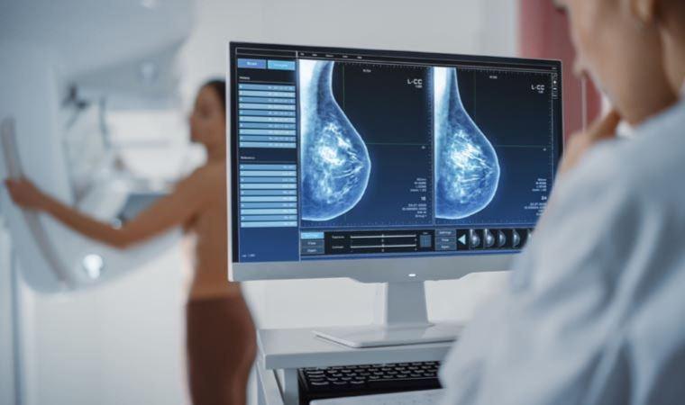 40 yaş altı meme kanseri vakalarında can kaybı arttı