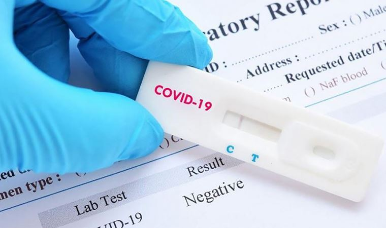 Koronavirüs testinde yanıltıcı negatifliğe dikkat!
