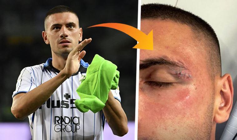 Salernita - Atalanta maçında milli futbolcu Merih Demiral, kanlar içinde kaldı